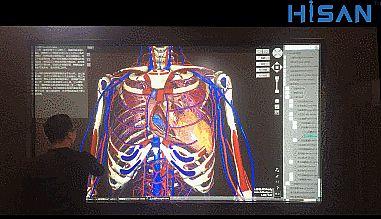 Hisan激光医疗屏创新打造医疗新方案