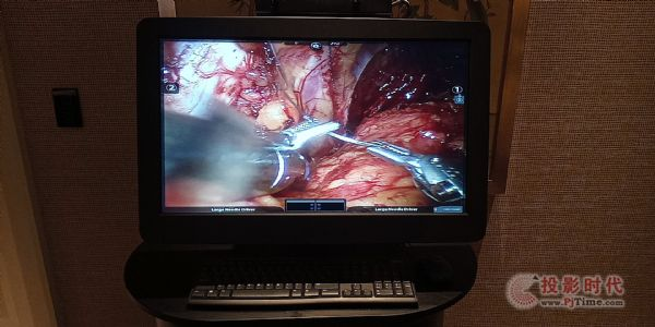 barco的医疗显示器.jpg