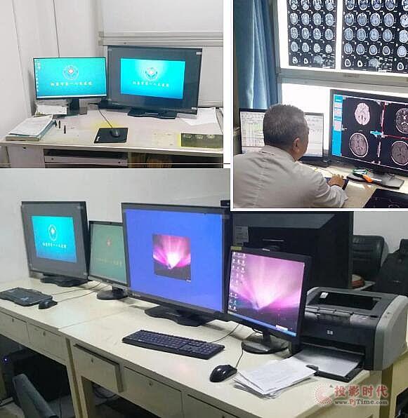 睿显专业诊断显示器入驻阳泉市医院