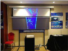 投影效果的中心:屏幕演绎王端进步